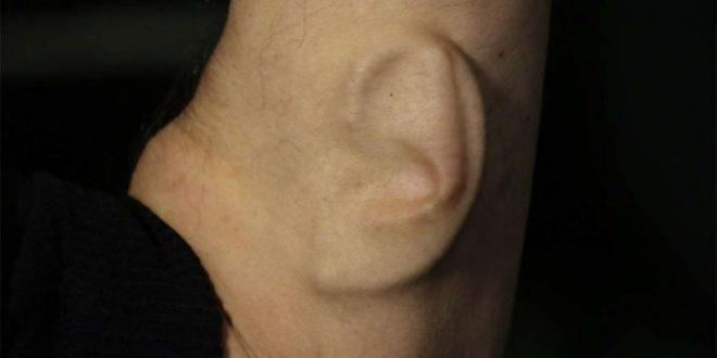 В Китае мужчине пересадили ухо, выращенное на его же руке