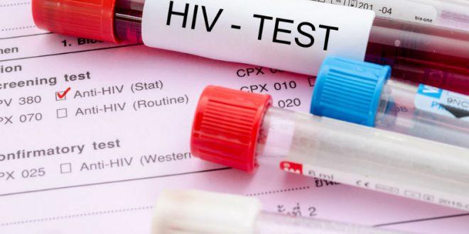 В США съемки порно остановили из-за положительного теста на ВИЧ одного из актеров